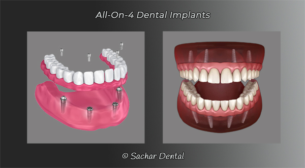 Picture of All-on-4 dental implants two diagrams
