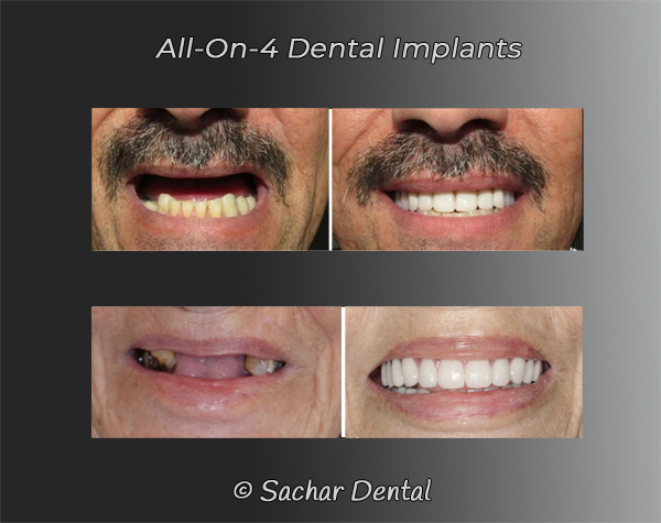 Picture of before and after patients with all-on-4 dental implants, 2 different patients