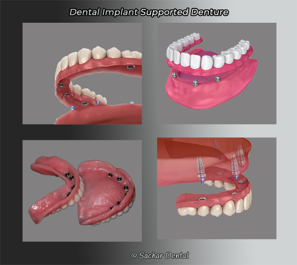Picture of four diagrams of dental implants supported dentures