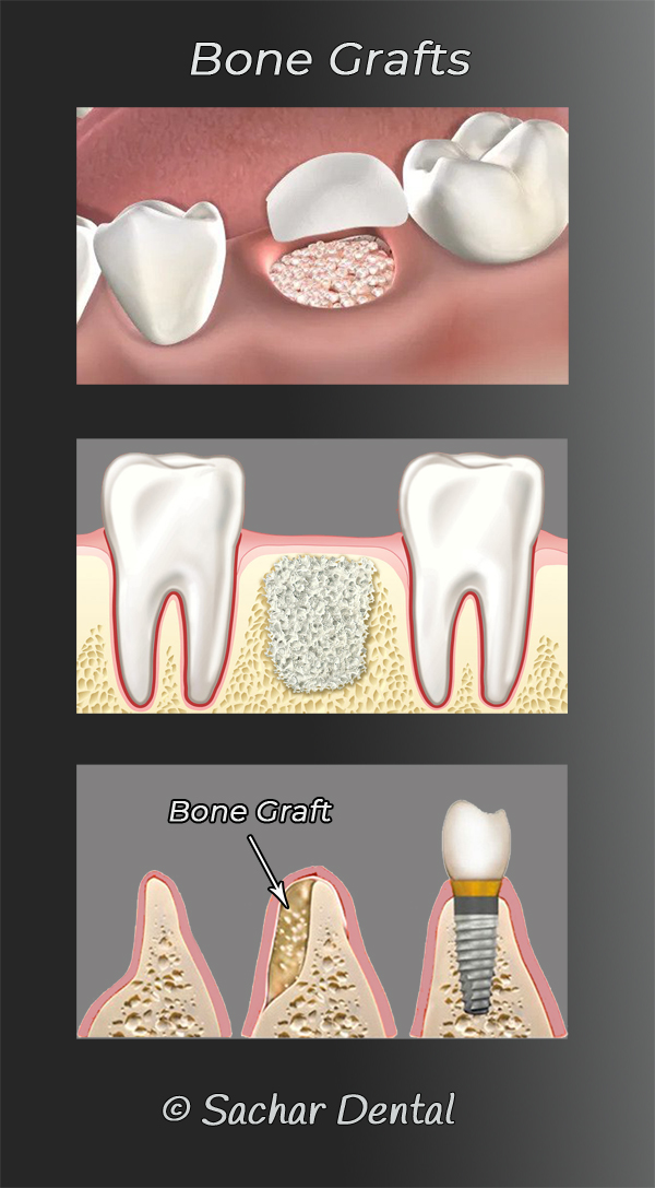 Picture of diagrams of bone grafting for Dental implants