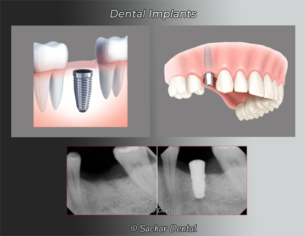 Dental implants diagrams of implant, abutment, and crown