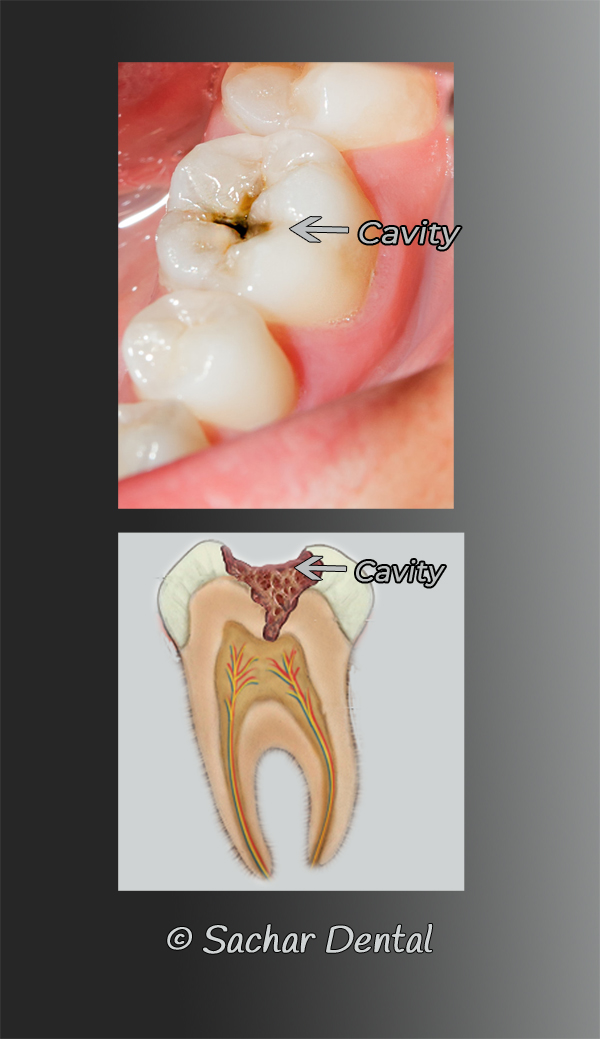 Dentist NYC for cavity fillings