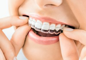 Top Dentist NYC for Invisalign
